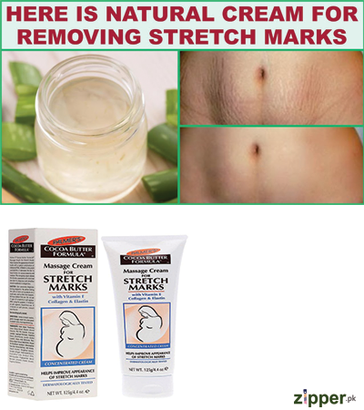Stretch Marks Removal Cream In Lahore Karachi Islamabad